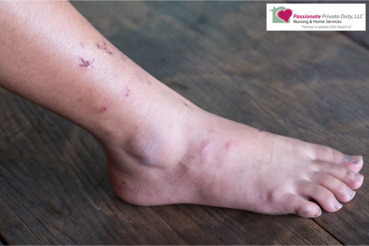 Diabetes Management: 5-Point Guide in Foot Care